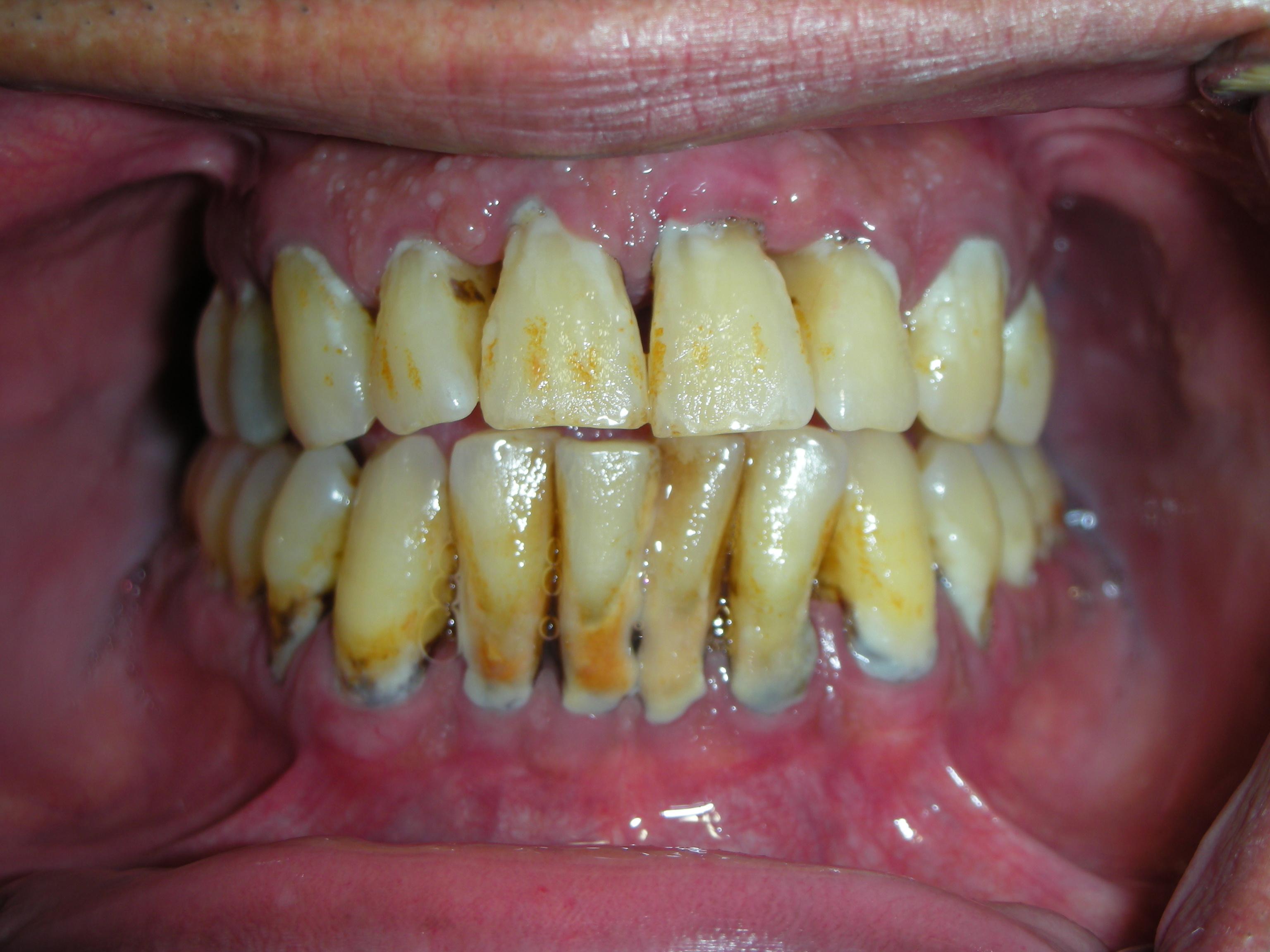 Advanced Periodontitis