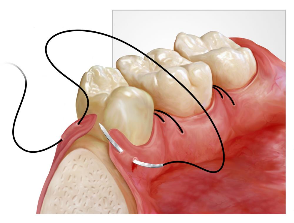 Periodontal Plastic Surgery | Dr. Georgios Tasoulis D.D.S.